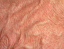 Dry skin on hand Royalty Free Stock Photo