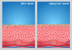 Dry skin, healthy skin texture ,  Stock Image