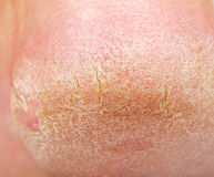 Dry skin on heel. Close up photo of a person with dry skin on heel Stock Image