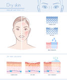 Dry skin. Hydration infographic with skin diagram; skincare and beauty concept stock illustration