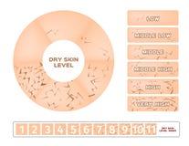 Dry skin level infographic. On white background Stock Photo