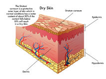 Dry skin. Medical illustration of the effects of dry skin stock illustration