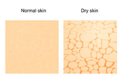 Dry skin and normal skin. Stock Photos