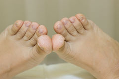 Dry toes. Foot Treatment. Stock Photos
