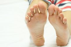Dry woman feet are stretched straight to relax. The dry woman feet are stretched straight to relax on a white background stock images