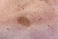Duży birthmark na kobieta plecy fotografia royalty free