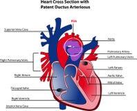 Ductus arteriosus Stock Images