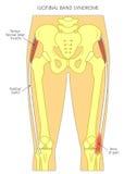 Duela en el síndrome iliotibial de la banda de la junta de cadera libre illustration