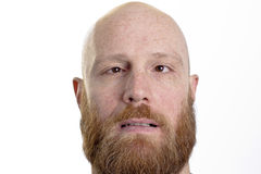Dummer kahler Mann mit rotem Bart und gekreuzten Augen Lizenzfreie Stockfotos