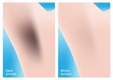 Dunkle und weiße Achselhöhle Stockbilder