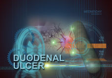 Duodenal ulcer Stock Image