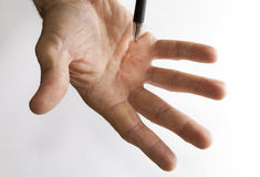 Dupuytren's Contracture early symptom Royalty Free Stock Image