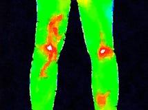 DW lägger benen på ryggen thermography Royaltyfri Fotografi