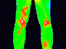 DW Legs thermography. Thermographic image of the backs of legs showing different temperature in a range of colors from green showing cold to red showing hot Royalty Free Stock Photography