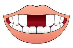 Dwa Frontowych zębów Brakować Obrazy Stock