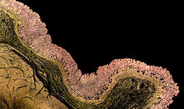 Dwarsdoorsnede van een normale maag die pyloric mucosa tonen Stock Fotografie
