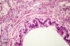 Dwarsdoorsnede van menselijk longweefsel die longpijptakje en alveolen tonen royalty-vrije stock afbeeldingen