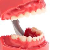 Dylatacja zęby, uzębienie obrazy royalty free