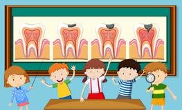 Dzieci i zębu gnicia diagram ilustracji