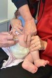 Dziecka szczepienie Zdjęcia Stock