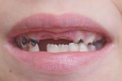Dziecka usta Obrazy Royalty Free