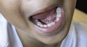 Dziecko zęby właśnie opuszczają w usta zdjęcie stock