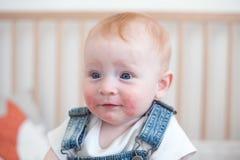 Dziecko z atopic dermatitis obraz royalty free