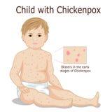 Dziecko z chickenpox Zdjęcia Stock