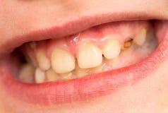 Dziecko zęby Makro- Obrazy Royalty Free