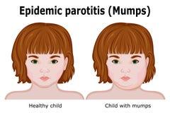 Dziecko z objawami mumps Zdjęcie Royalty Free