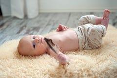Dziecko z seborrheic dermatitis zdjęcia stock