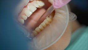 Dziewczyna siedzi w dentysty biurze z Optragate fotografia royalty free