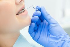 Dziewczyna z brasami przy przyjęciem przy dentysty zakończeniem Ręka z instrumentem przy cierpliwymi ` s zębami obrazy royalty free