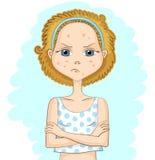 Dziewczyna z problemową skórą Fotografia Royalty Free