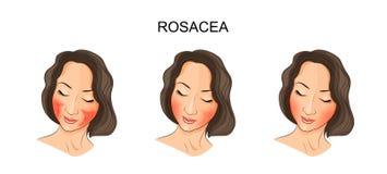 Dziewczyny twarz, rosacea royalty ilustracja