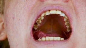 Dziura w zębie i traktowanie stomatologiczni kanały Traktowanie periodontitis w stomatologicznej klinice zbiory wideo