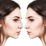 Żeński nos przed i po chirurgią plastyczną obrazy stock