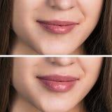 Żeńskie wargi przed i po augmentacją obrazy stock