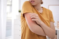 E Allergitecken arkivfoton