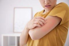 E Allergitecken royaltyfri foto