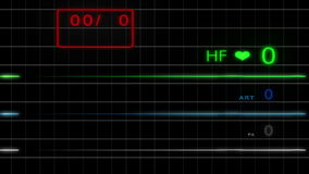 e C G monitor z siatką - HD - Bez pulsu -