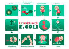 E. coli. Symptom of Patients Escherichia coli Info Graphic. illustration Stock Photo