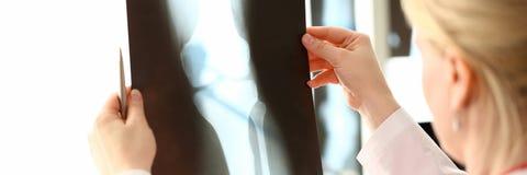 ?e?ski radiologa mienie w r?ki promieniowaniu rentgenowskim fotografia royalty free