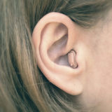 In-the-ear hearing aid in close-up. The hearing aid is in the ear of the girl stock photo