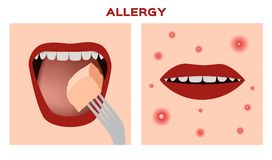 Eating an allergy food Royalty Free Stock Photos