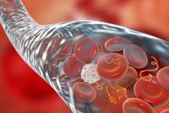 Ebolavirussen in bloed Stock Illustratie
