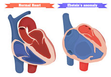Ebstein anomaly versus normal heart structure vector illustration. Right ventricle dysfunction, atrial enlargement. Normal heart chambers vector illustration Stock Image