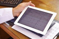 ECG на планшете Стоковое Изображение