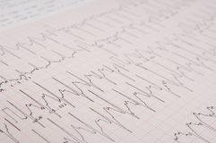 ECG. A close-up of a printout from an electrocardiogram Stock Image