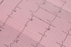 ECG. Detail of a real cardiogram plot with focus on the V1, V2 and V3 electrodes placements Royalty Free Stock Photography